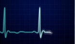 Pulse Trace Effect 2