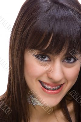 Beautiful young brunette with brackets on teeth 2