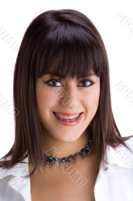 Beautiful young brunette with brackets on teeth 1