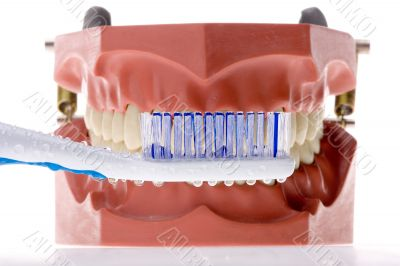 Dental mold and toothbrush 4