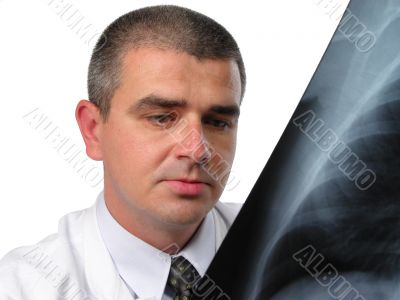 Doctor analizing a chest radiography