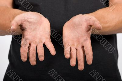 worker with dirty hands