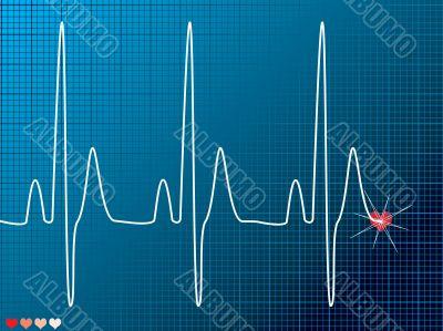 heart beat medical dark