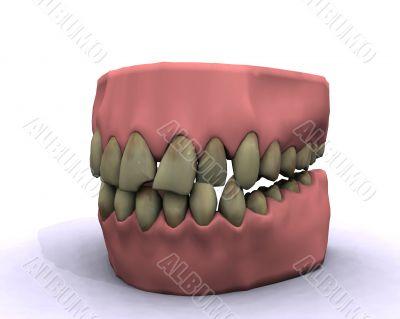 bad hygiene teeth