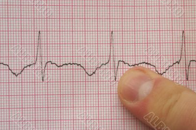 ECG with finger
