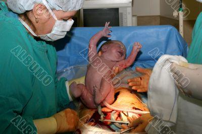 Babies Birth