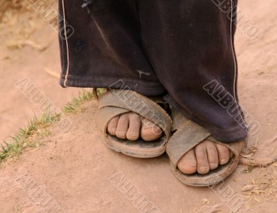 Poor child feets