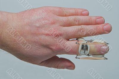 Finger Brace