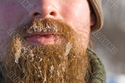 Ice in the beard