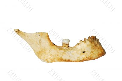 Human mandible with tooth