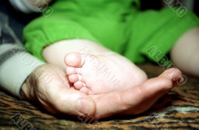 Infant foot and hand fingers with cracknel