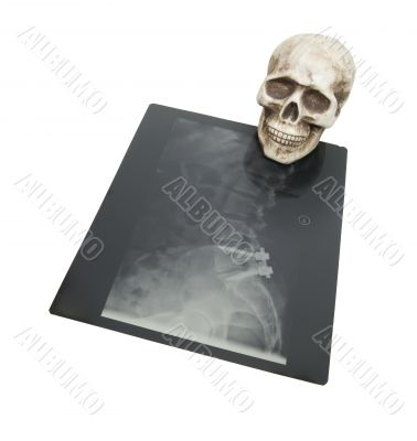 Bones and xrays