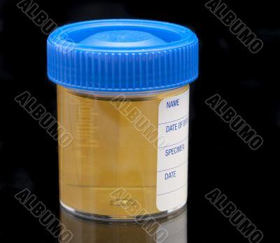 urine test specimen