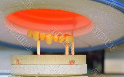 dental crowns, ceramics, furnace