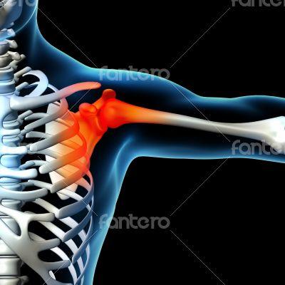 Human shoulder pain with skeleton shoulder